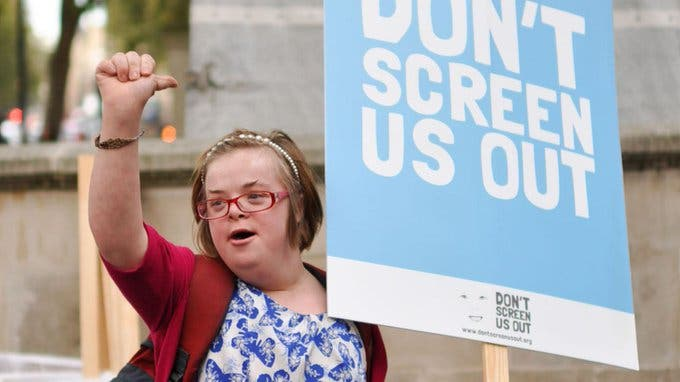 Down's Syndrome Woman Wants to Change The Abortion Law Which is 'Downright Discriminatory'