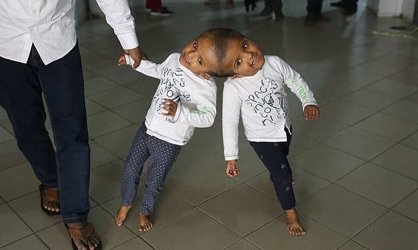 The three-year-old twins will return to Bangladesh after three month to undergo the final operation to separate them (AFP)