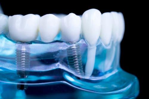زراعة الأسنان.. ليست خياراً مناسباً