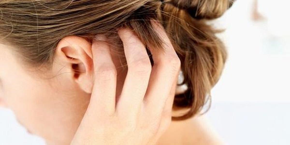 5 أسباب لماذا تعاني من حكة فروة الرأس البوابة