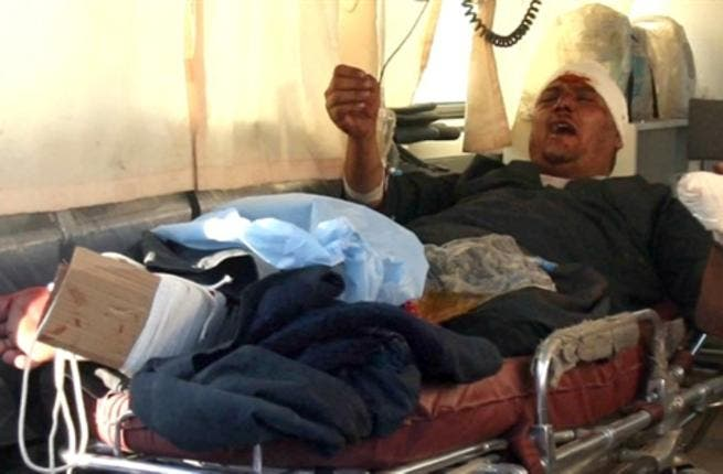 An injured Iraqi waits in the back of an ambulance in Karbala.