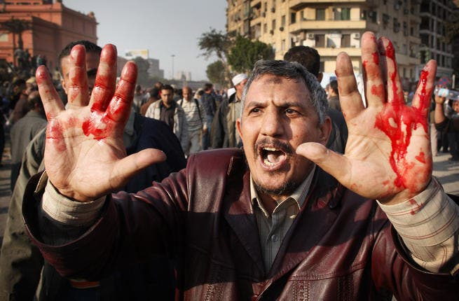 An anti-government protestor shows blooded hands from an injury received during clashes with supporters of President Mubarak in Tahrir Square.