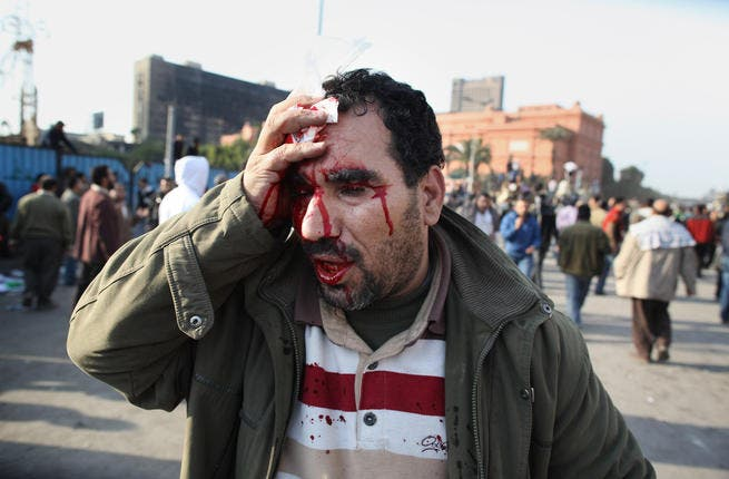 An anti-government protestor holds a cloth to his head injury after clashes with supporters of President Mubarak in Tahrir Square.