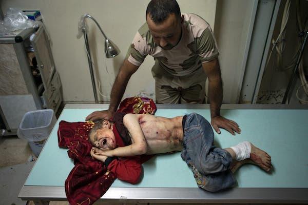 طفل جريح في حلب