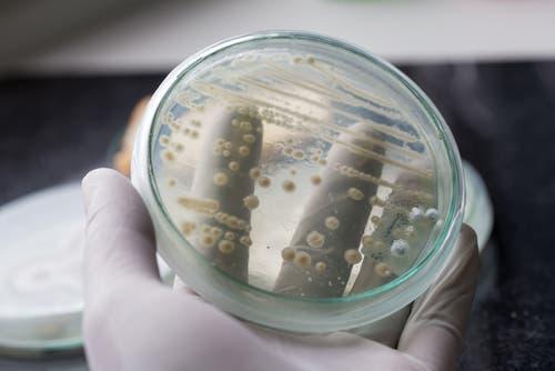 فطريات المهبل الأسباب الأعراض طرق العلاج البوابة