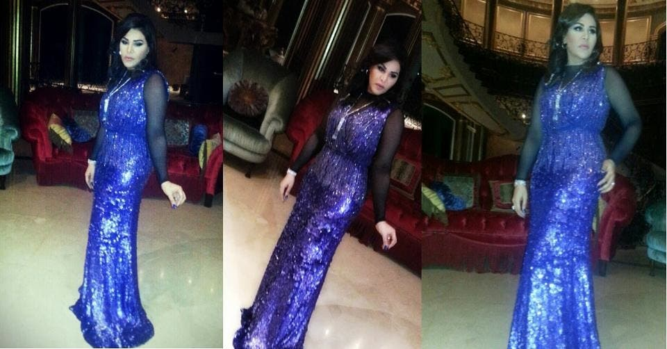 Ahlam's sparkly dress conceals her extreme weight loss.