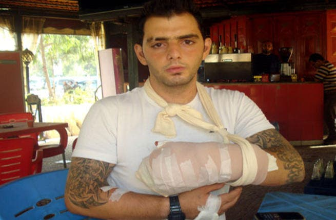 Ehab Al Azzi had his fingers chopped off by religious extremists on Sunday (Photo courtesy of annahar.com)