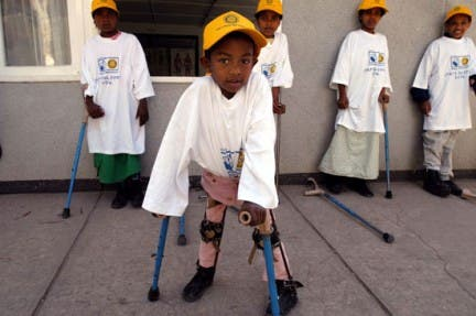 Polio is an incurable disease that attacks the nervous system leaving its victims paralyzed for life (Courtesy of Rotary International-UK and Ireland)