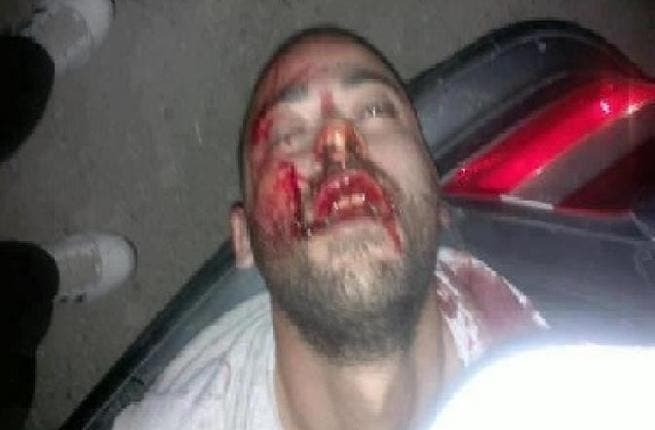Mohammad Rafea covered in blood
