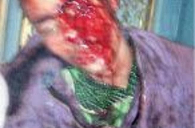 'Victim of torture at presidential palace' (Photo: Mohamed El-Garhi)