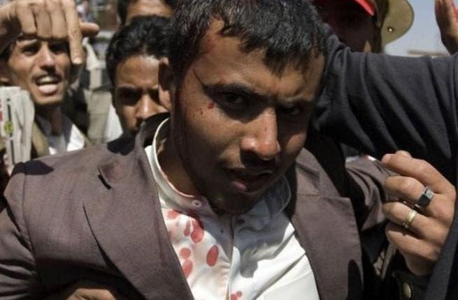 Yemeni wounded