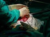 عملية زراعة الكبد هي عمليّة يتم فيها نقل جزء من كبد سليمة إلى شخص مصاب بالفشل الكلوي