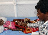 A Yemeni tends to his malnourished child as she receives treatment at a hospital in the Yemeni port city of Hodeidah. (AFP/File)