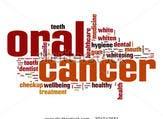 يعتبر الأشخاص الذين يتناولون الكحول بكثرة عرضة للإصابة بسرطان الفم أكثر من غيرهم (shutterstock.com)