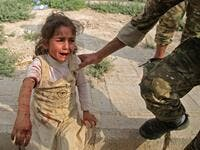 A Syrian girl reacts to her wounds (AFP)