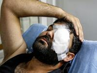 Palestinian photojournalist Muath Amarneh lost his left eye yesterday by Israeli sniper fire while covering protests in Surif near Al-Khalil (Hebron)(Twitter)