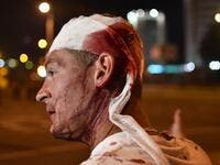 An injured man is seen during clashes between riot police and opposition supporters in Minsk on August 10, 2020. A man died during rallies in Belarus on August 10 night when an explosive device went off in his hand, police said, confirming the first casualty of post-election protests. Sergei GAPON / AFP