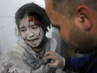 Syrian girl receives treatment as victims of reported regime air strikes