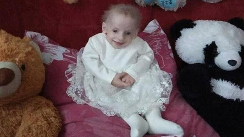 Ukrainian 8 Year Old Girl Becomes World S Youngest To Die Of Old Age Disease Al Bawaba