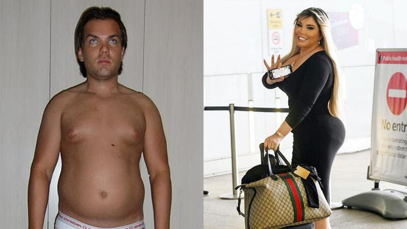 'I Was Born to Be a Mother'! Former Human Ken Doll Transexual Rodrigo Alves Reveals New Moniker (Video)