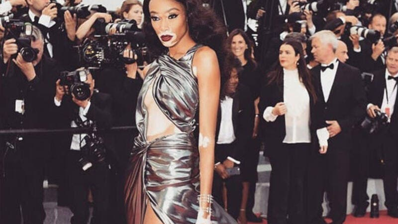 The 23-year-old Canadian model Winnie Harlow looked sensational as she flaunted her statuesque figure (Source: winnieharlow/ Instagram)