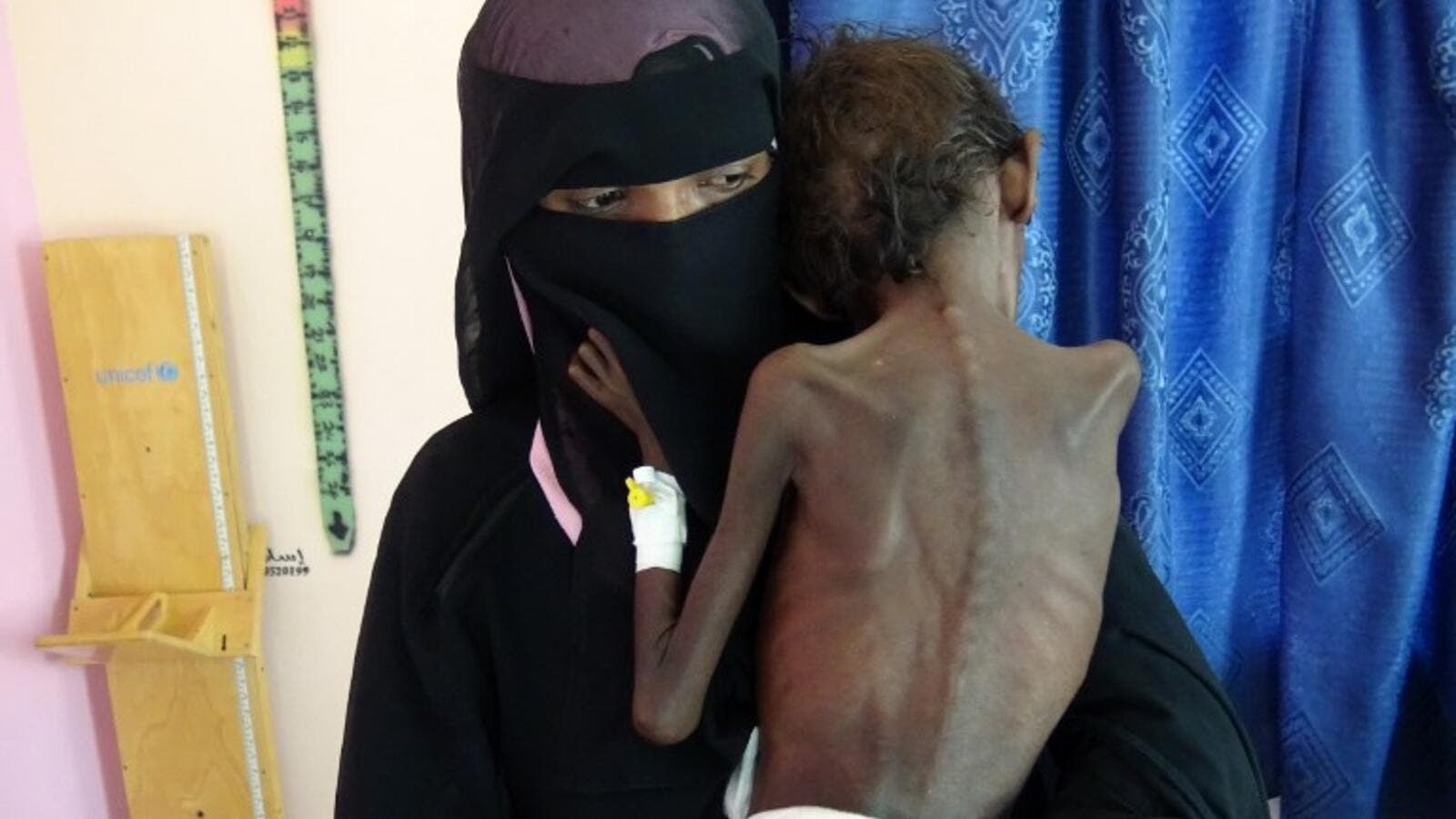 emeni mother Nadia Nahari holding her five-year-old son Abdelrahman Manhash, who is suffering from severe malnutrition and weighing 5 kilograms (AFP)